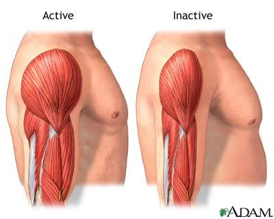 active-vs-inactive-muscle-picture